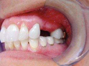 mini dental implants Detroit, MI